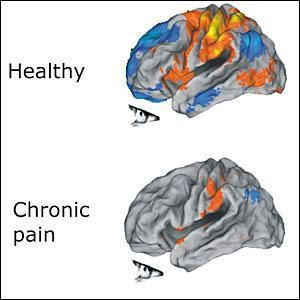 Chronic Pain Harms the Brain, Study Finds